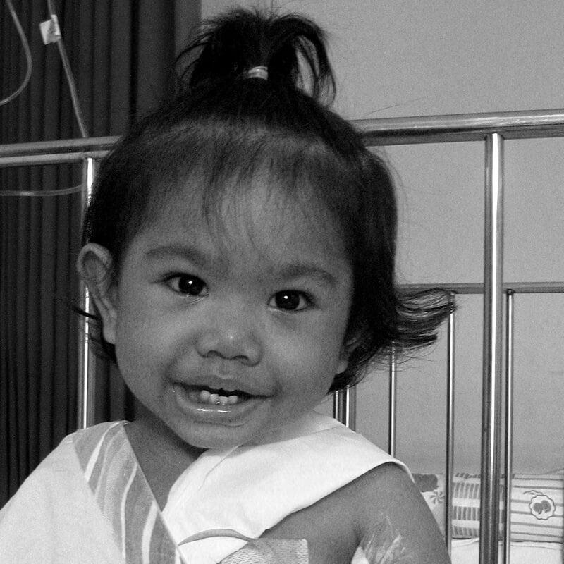 Tiga Kali Lakukan Operasi, Kini Aisha Sudah Sembuh Total dari Kelainan Bawaan Lahir